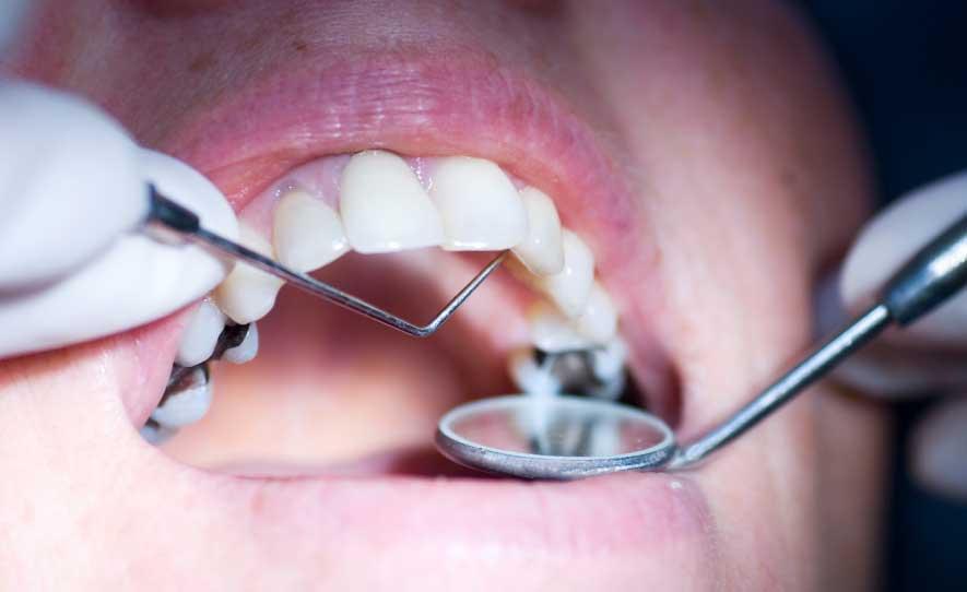 Dentist in Karama Dubai