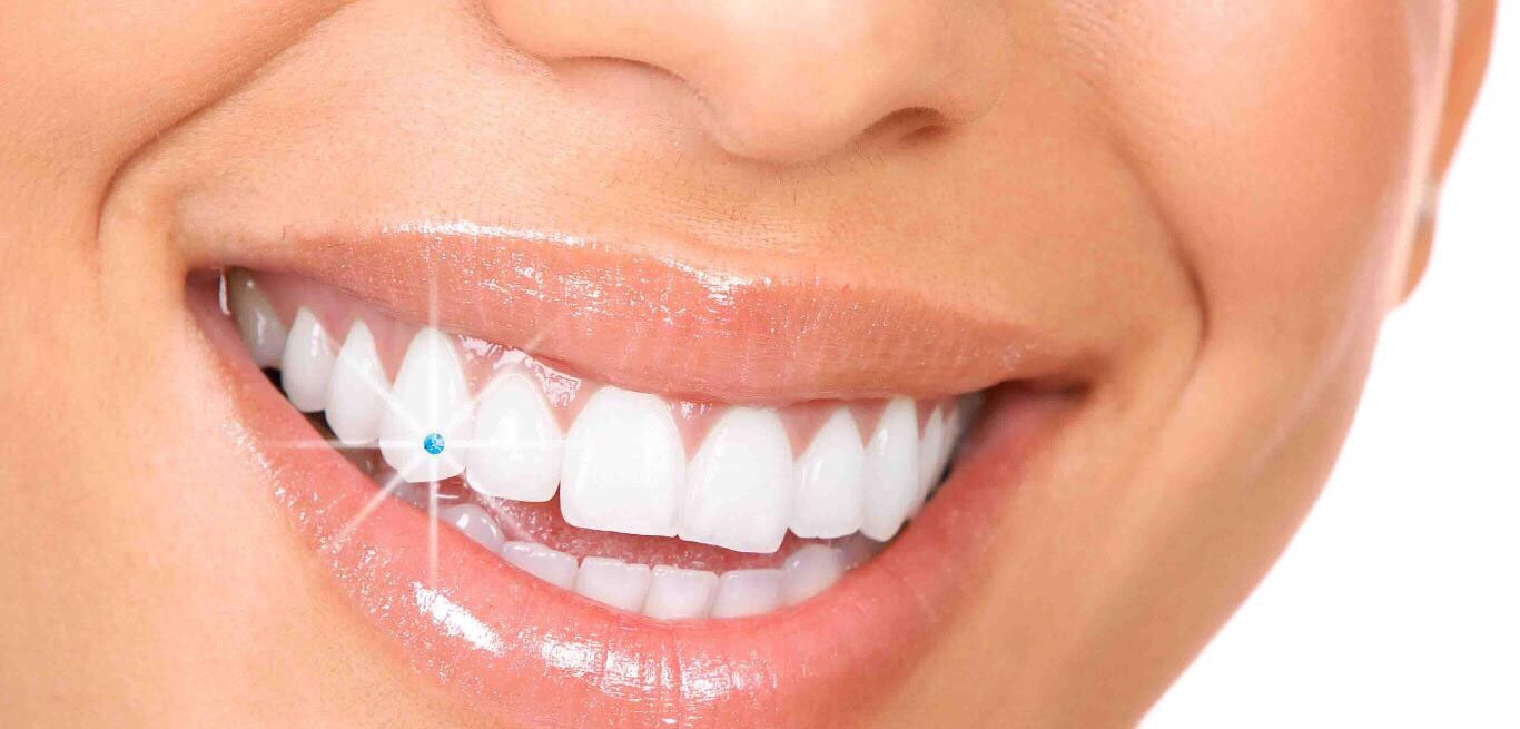 Tooth jewelry+scaling and polishing 400 dhs only