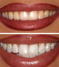 Whitening of Teeth in Dubai