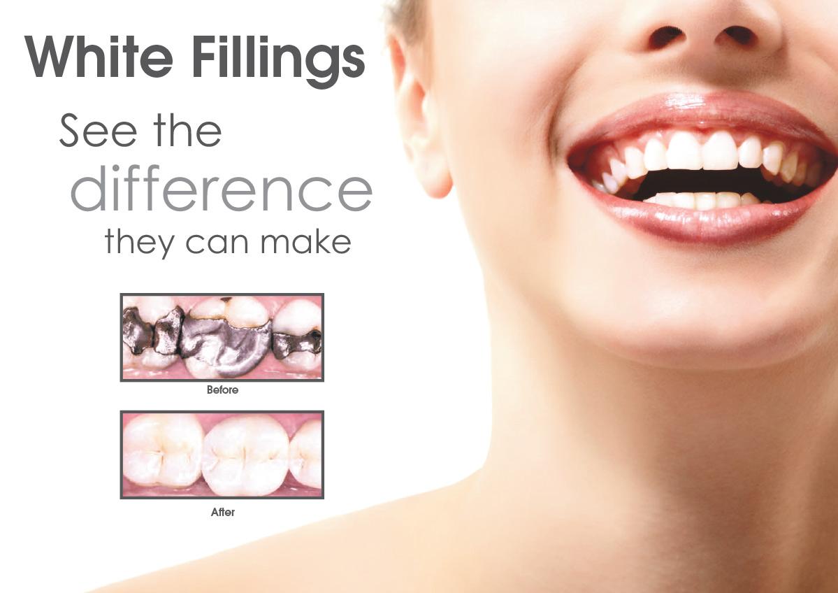 Best Dentist in Dubai - Karama from India